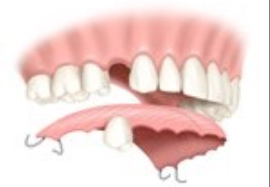 Appareil dentaire mobile
