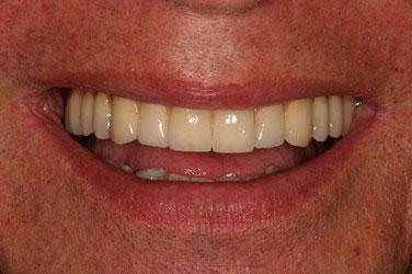 Après pose implants dentaires 2