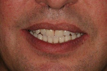 Après pose implants dentaires