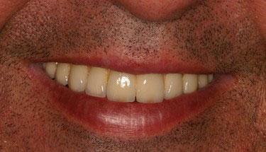 Après réhabilitation complète fixe maxillaire 2
