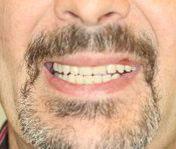 Après réhabilitation complète fixe maxillaire et mandibulaire 2