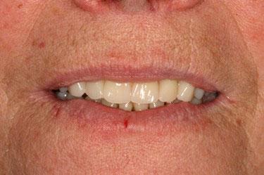 Après réhabilitation complète fixe maxillaire et mandibulaire