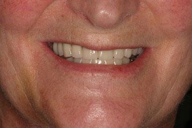 Apres réhabilitation complète fixe maxillaire sur 6 implants dentaires