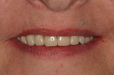 Après réhabilitation complète fixe maxillaire