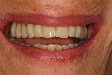 Après réhabilitation maxillaire sur 6 implants dentaires