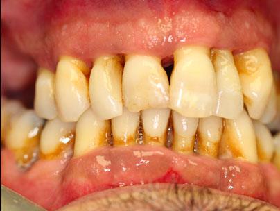 Avant opération implants dentaires All-on-4