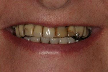 Avant réhabilitation complète fixe maxillaire 2