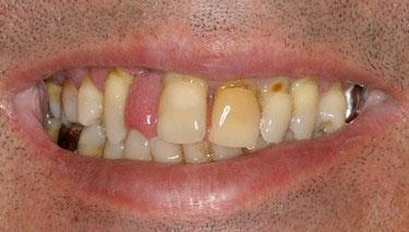 Avant réhabilitation complète fixe maxillaire 3