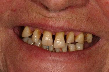 Avant réhabilitation complète fixe maxillaire et mandibulaire