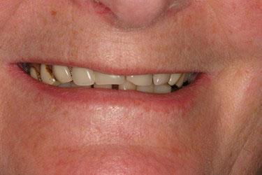Avant réhabilitation complète fixe maxillaire sur 6 implants dentaires