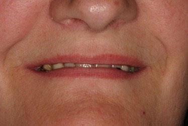 Avant réhabilitation complète fixe maxillaire