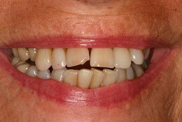 Avant réhabilitation maxillaire sur 6 implants dentaires