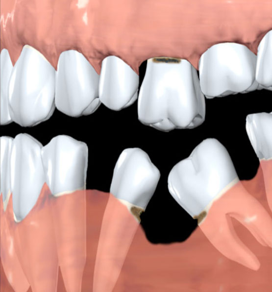 Déchaussement de dents en l'absence d'implant dentaire