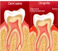 Schéma gingivite