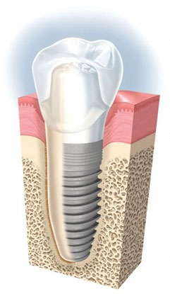 Structure implant dentaire