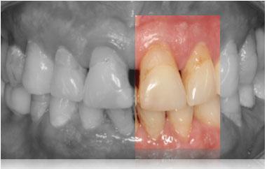 Symptôme parodontite