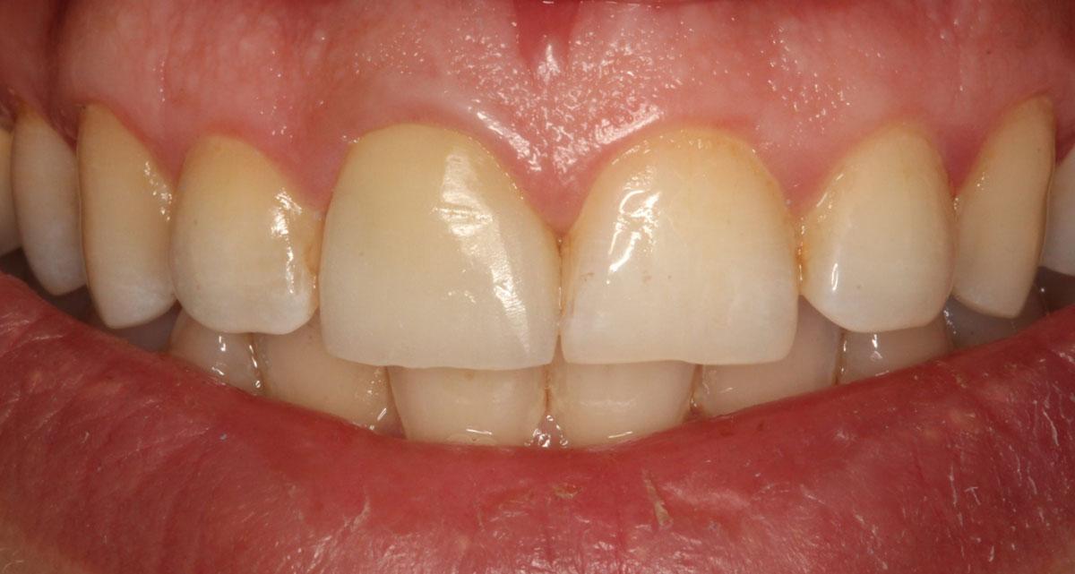 Après pose facettes dentaires 1