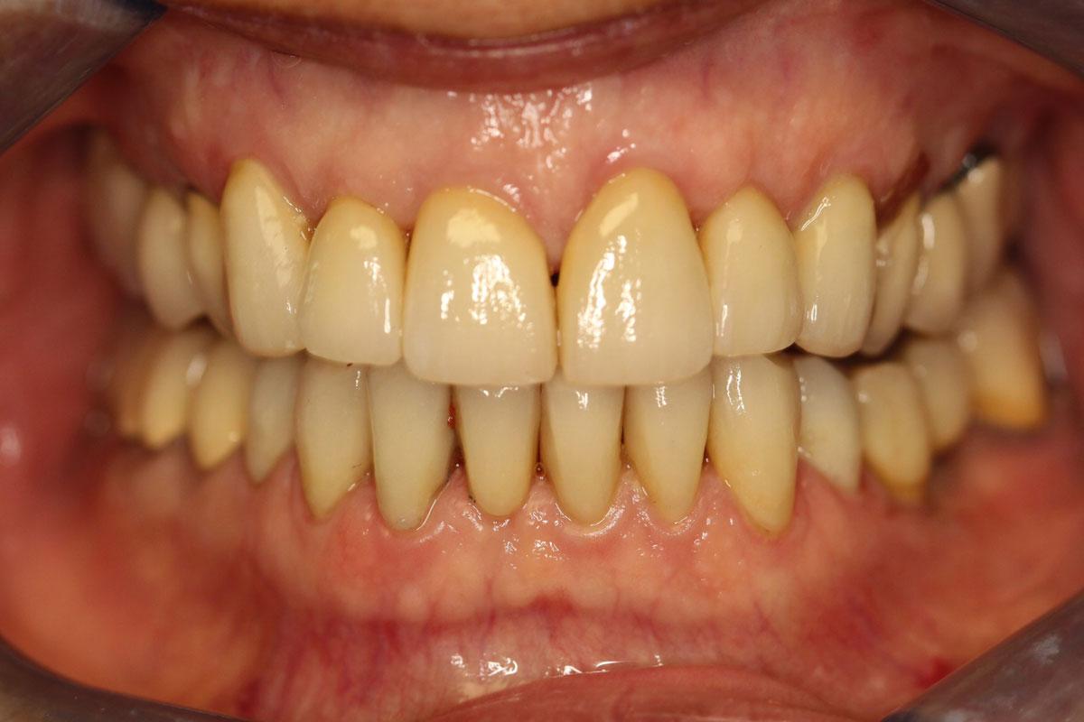 Après pose facettes dentaires 2
