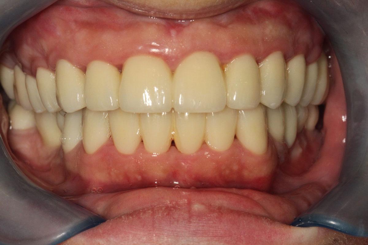 Après pose facettes dentaires 3