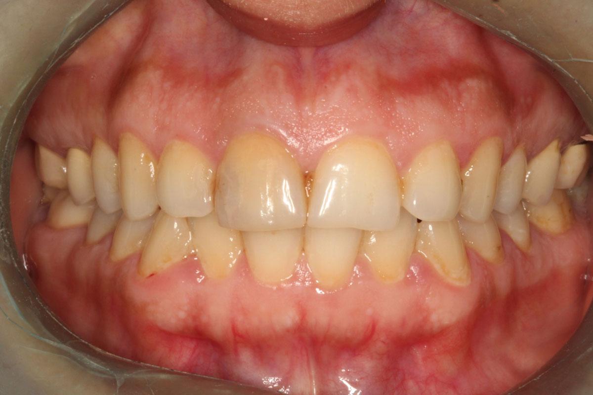 Avant pose facettes dentaires 1