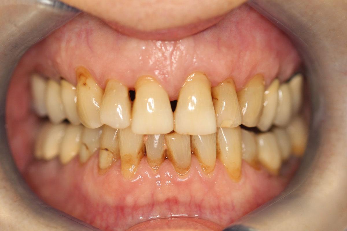 Avant pose facettes dentaires 2