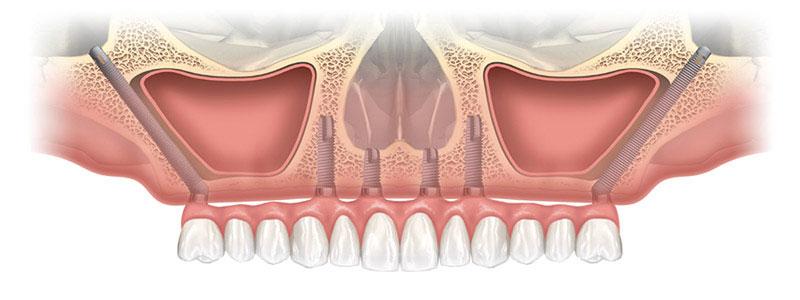 Implants zygomatiques Lyon