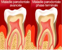 Schéma maladie parodontale