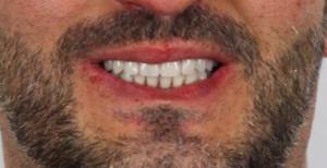 Réhabilitation complète fixe mandibulaire sur 4 implants Après